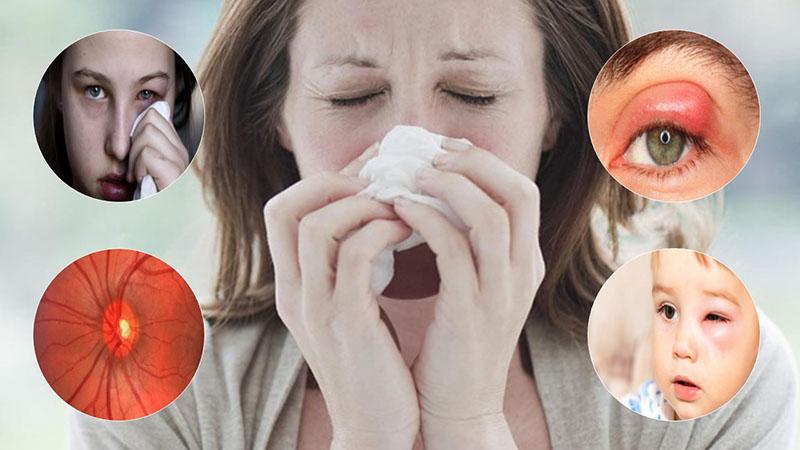 Viêm xoang gây biến chứng đến mắt
