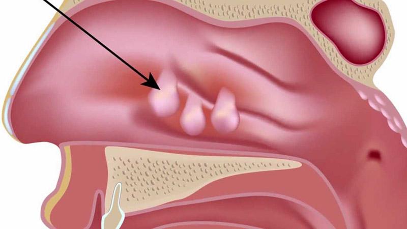 Viêm xoang có polyp mũi là tình trạng thoái hóa mô mềm tại niêm mạc mũi