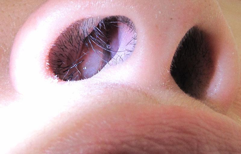 Dấu hiệu nhận biết viêm xoang có polyp mũi là khối giả u mọc bất thường