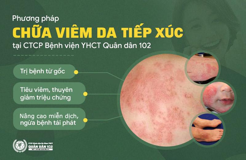 Ưu điểm khi chữa viêm da tiếp xúc tại CTCP Bệnh viện Quân dân 102