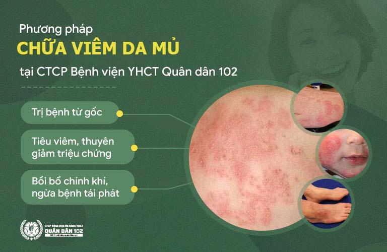 Cơ chế chữa viêm da mủ tại Bệnh viện Quân dân 102