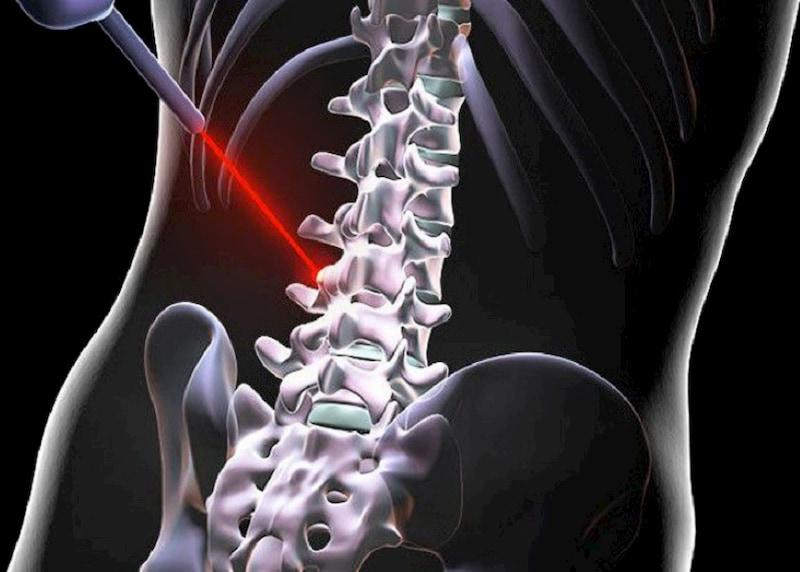 Điều trị thoát vị đĩa đệm bằng laser cho bệnh nhân ở mức độ trung bình