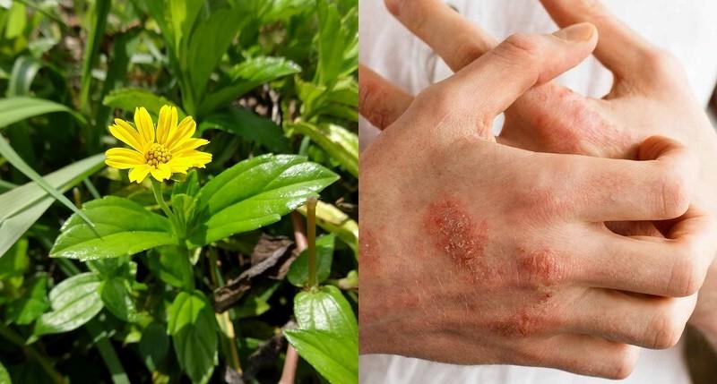 Một số lưu ý khi dùng cây sài đất chữa viêm da cơ địa