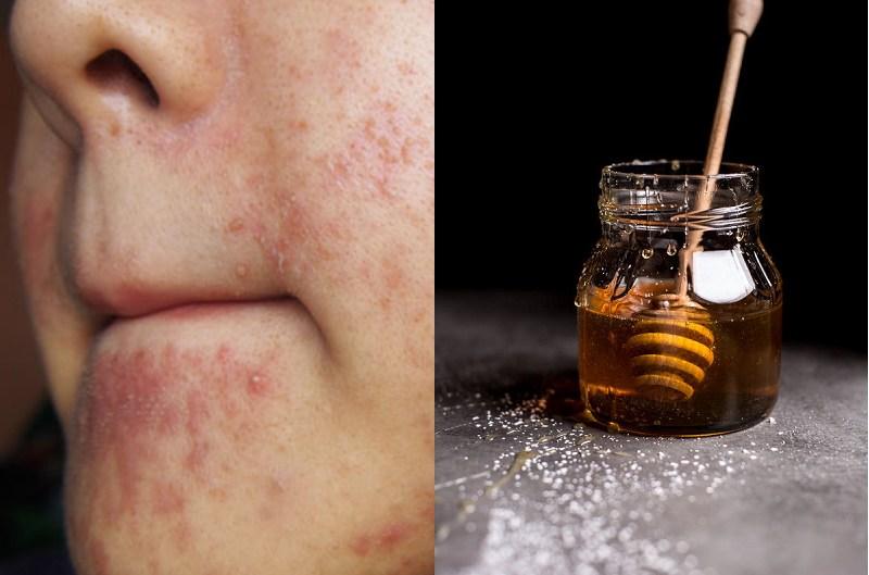 Những lưu ý khi trị viêm da tiết bã bằng mật ong