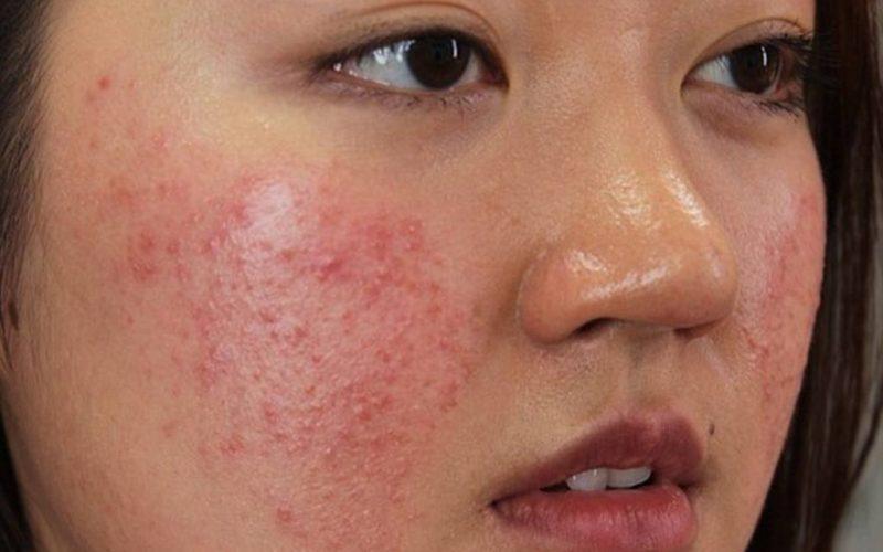 Viêm da dị ứng có để lại sẹo không là tùy thuộc vào tình trạng của bệnh