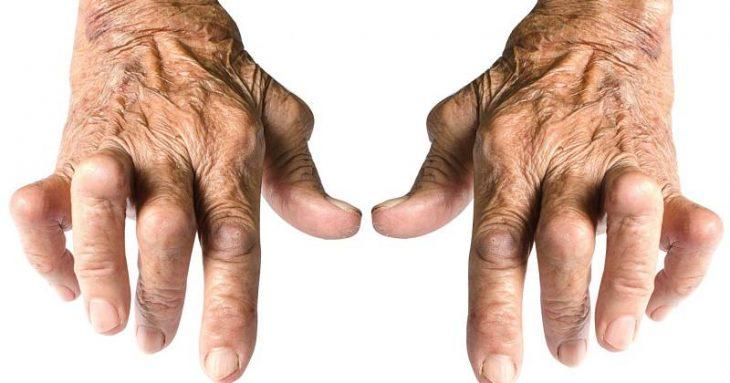 Thấp khớp là bệnh lý gây đau nhức khó chịu cho người bệnh
