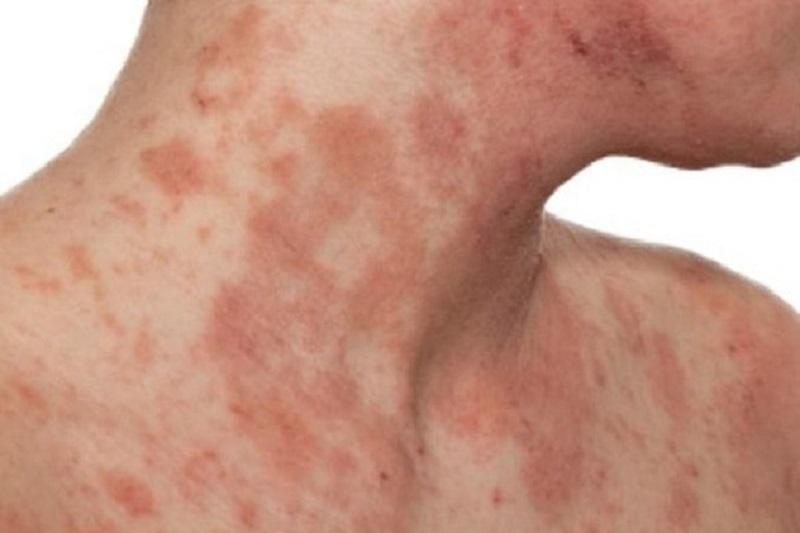 Viêm da cơ địa có tự khỏi không là thắc mắc của nhiều người bệnh