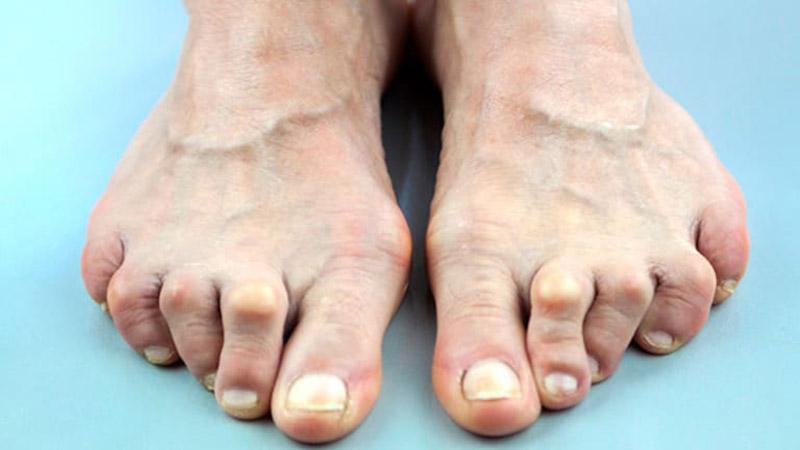 Bệnh viêm khớp bàn chân - bệnh lý xương khớp nguy hiểm