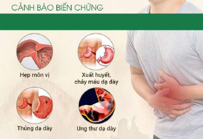 Các biến chứng bệnh dạ dày và cách phòng ngừa hiệu quả