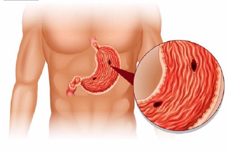 Thủng dạ dày khiến dịch tiêu hóa tràn vào ổ bụng gây viêm nhiễm và hoại tử
