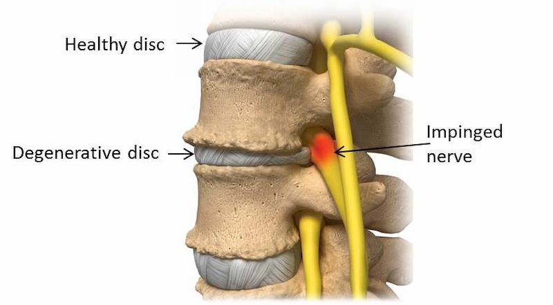 Thoái hóa cột sống – rủi ro tiềm tàng sau phẫu thuật
