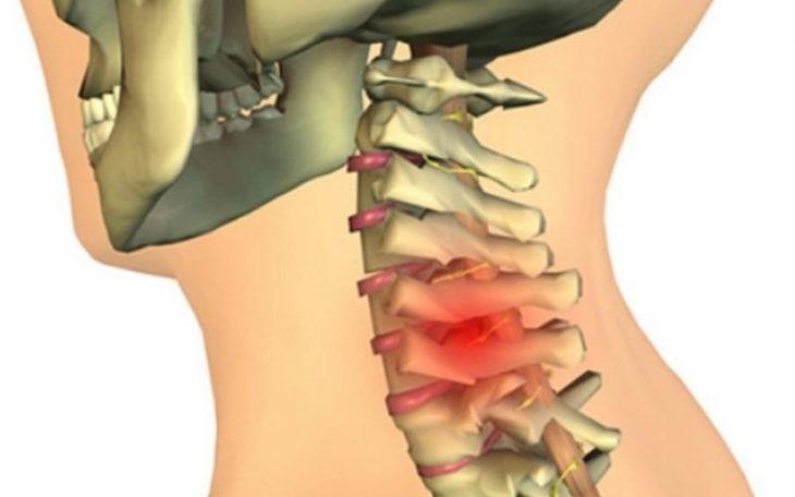 Cách chữa thoát vị đĩa đệm cột sống cổ an toàn, hiệu quả