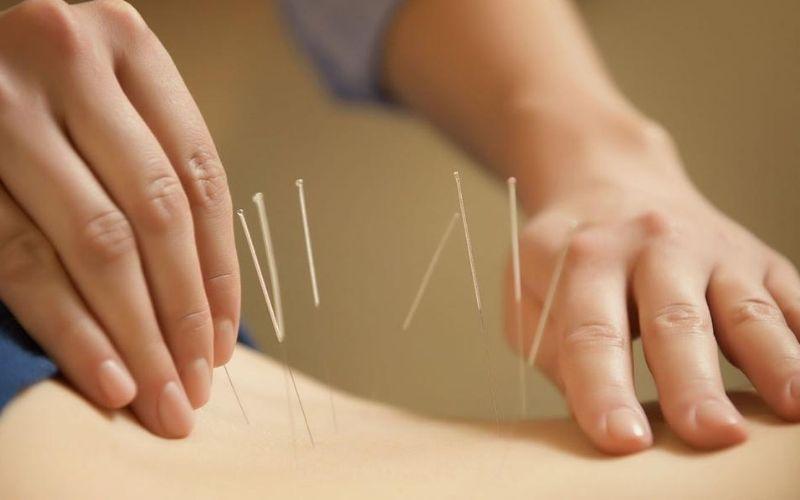 Cách chữa thoát vị đĩa đệm cuộc sống thắt lưng bằng châm cứu