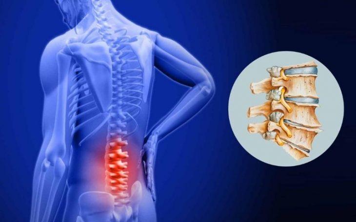 Cách chữa vôi hóa cột sống hiệu quả, dễ thực hiện