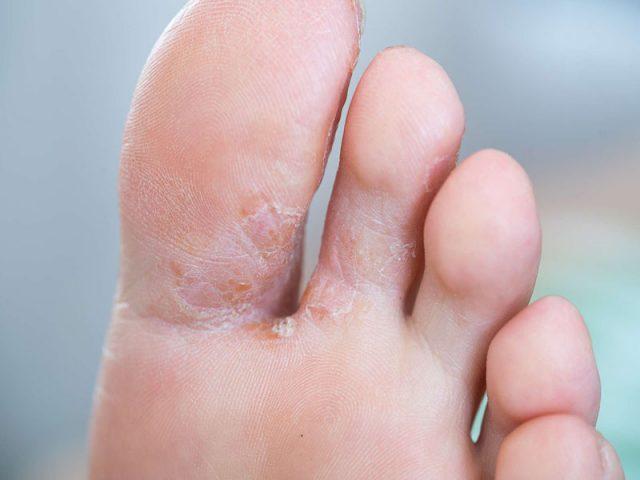 Viêm da cơ địa ở chân - Nguyên nhân, dấu hiệu & cách điều trị, ngừa tái phát