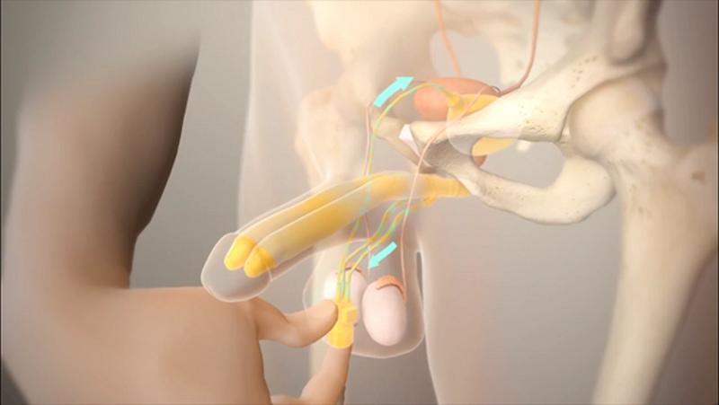 Phẫu thuật đặt thể hang nhân tạo - giải pháp cho bệnh nhân liệt dương