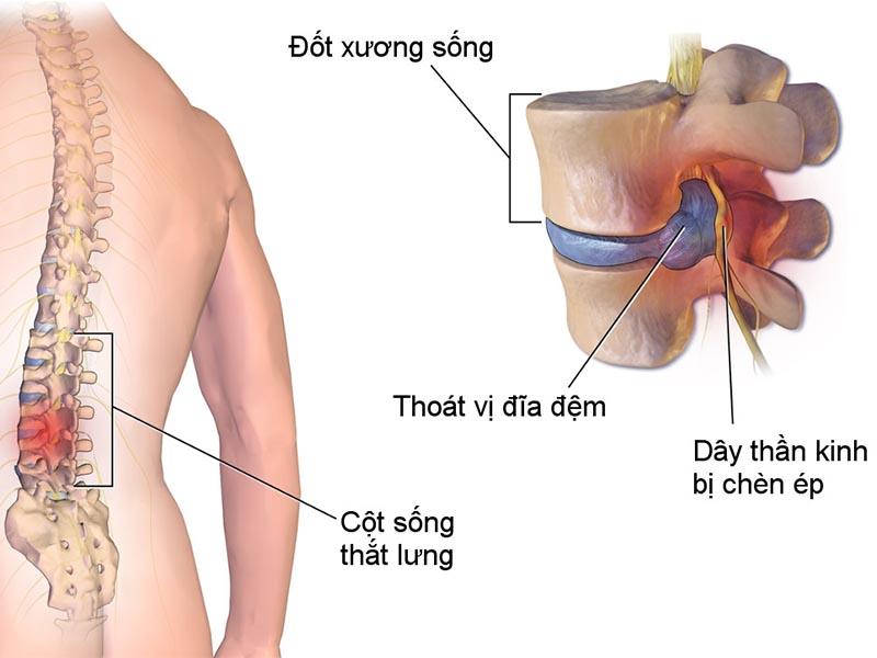 Chữa thoát vị đĩa đệm bằng Đông y tập trung vào giảm đau vùng cột sống