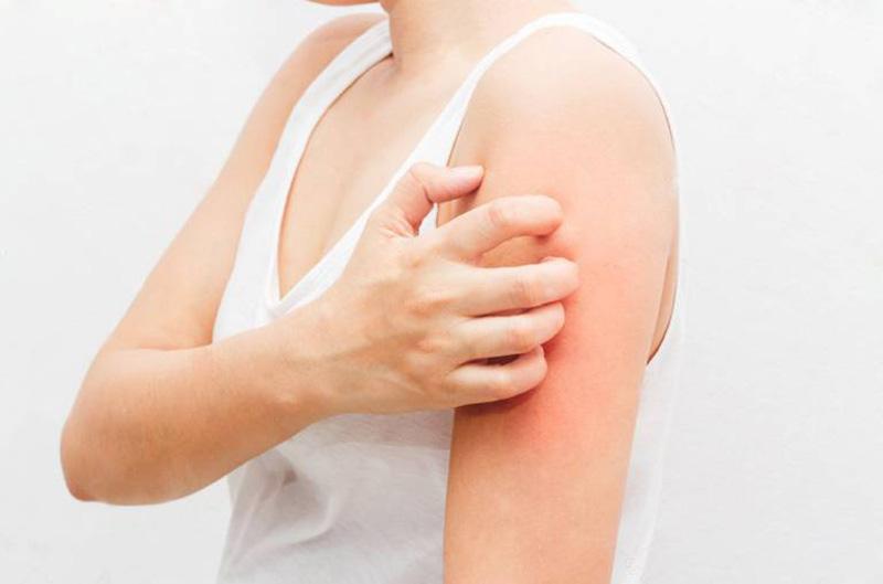 Trong quá trình chữa bệnh nên kết hợp với chế độ ăn uống và bảo vệ da hợp lý