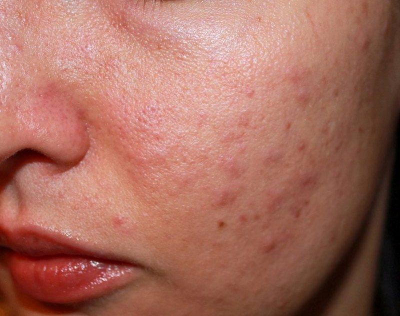 Chữa viêm da dị ứng bằng cây thuốc nam chỉ sử dụng cho trường hợp bệnh nhẹ