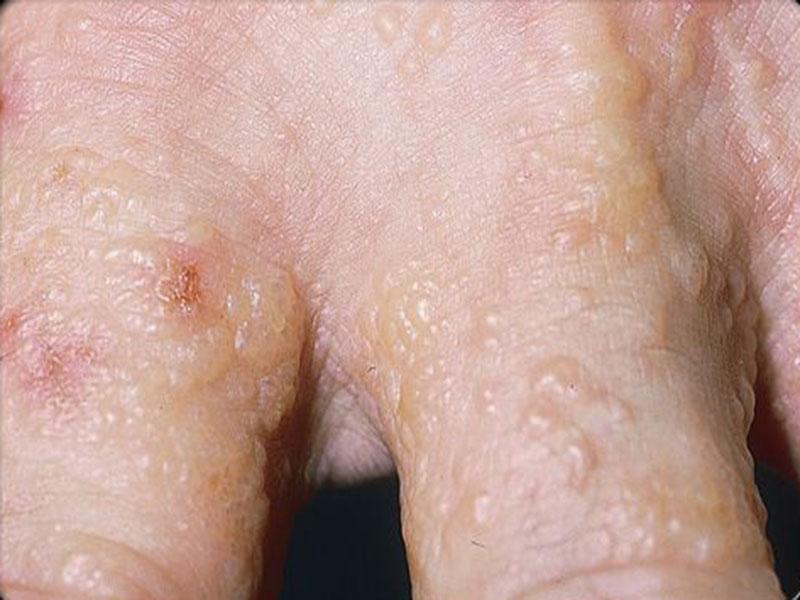 Da nổi mụn nước và ngứa thường xuất hiện ở tay, chân, ngực, cổ... đôi khi là toàn thân