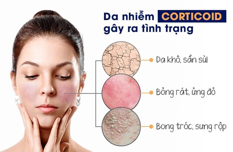 Da nhiễm độc Corticoid gây nên những tình trạng nghiêm trọng