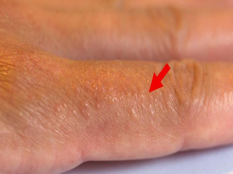 Da nổi mụn nước đỏ không ngứa là một dạng tổn thương ngoài da phổ biến