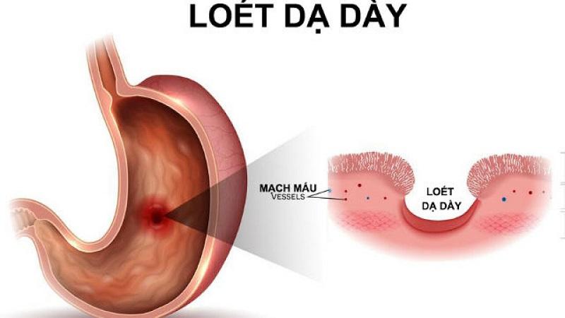 Bệnh đau bao tử cấp độ 2 - loét dạ dày