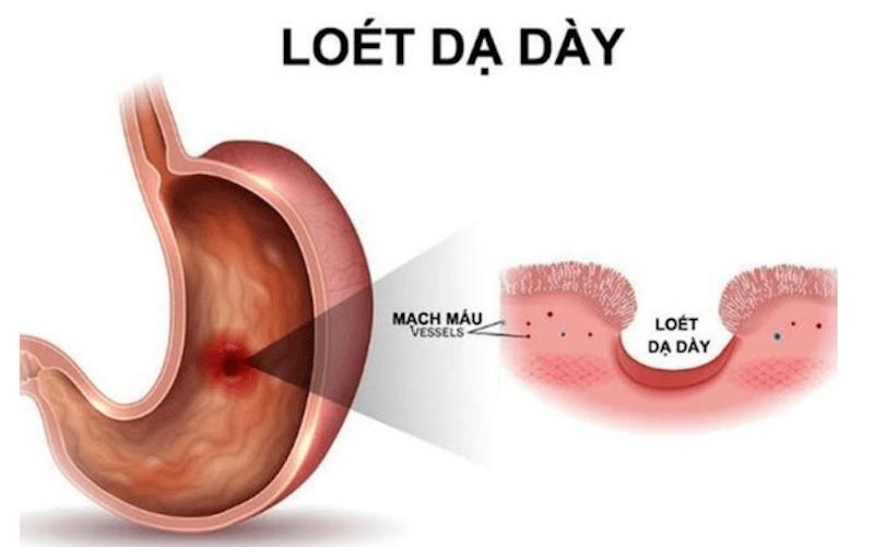 Viêm loét dạ dày có thể hình thành các cơn đau bao tử