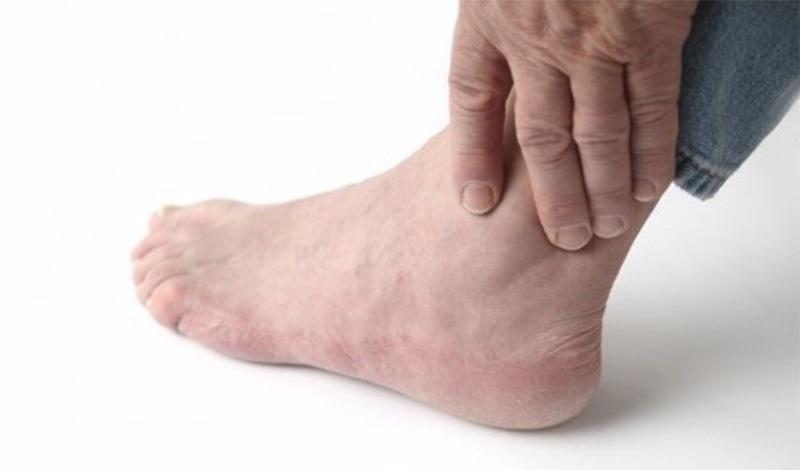 Bệnh đau cổ chân không chữa trị sớm có thể chuyển sang giai đoạn mãn tính