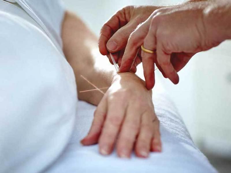 Châm cứu điều trị viêm đau khớp cổ tay