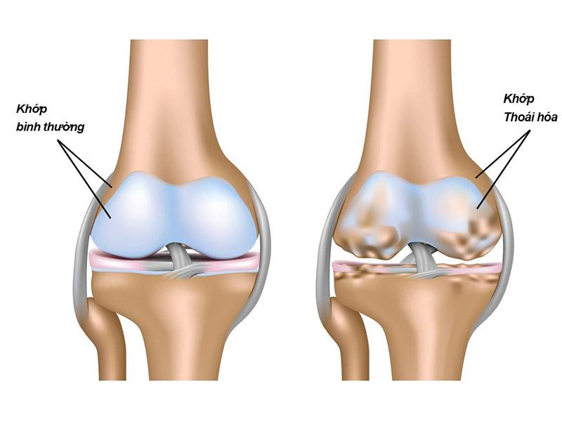 Đau khớp gối khi đứng lên ngồi xuống là dấu hiệu bệnh lý thoái hóa khớp