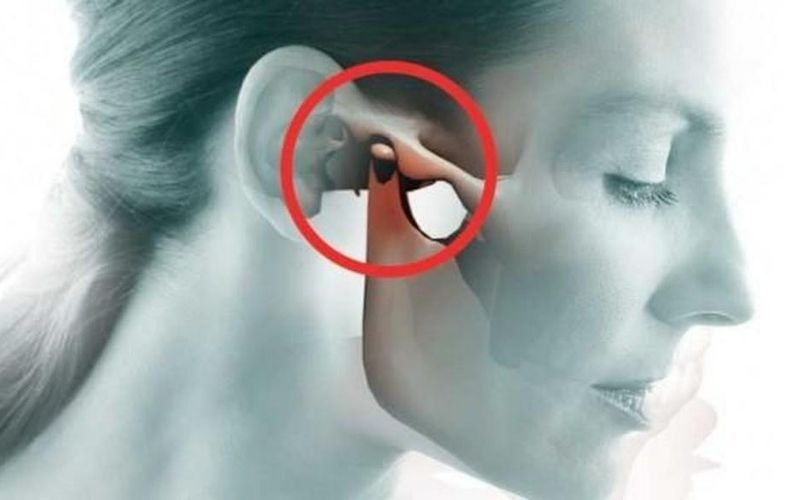 Đau khi há miệng là biểu hiện của nhiều bệnh lý liên quan đến xương khớp