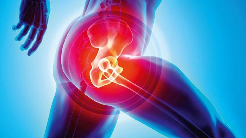 Đau khớp háng cần có biện pháp điều trị nhanh chóng