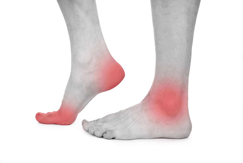 Triệu chứng đau khớp ngón chân điển hình nhất là tình trạng sưng tấy, nóng đỏ tại ngón chân