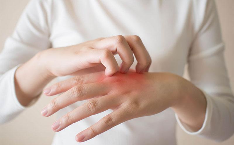 Triệu chứng đau nóng khớp, ngứa râm ran và sưng khớp rõ ràng