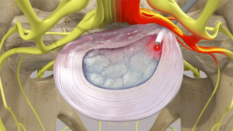Phương pháp có thể bảo tồn chức năng cột sống nhưng có thể gây áp xe cạnh màng cứng