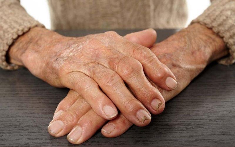 Rất nhiều bệnh nhân lựa chọn điều trị viêm khớp dạng thấp bằng Đông y