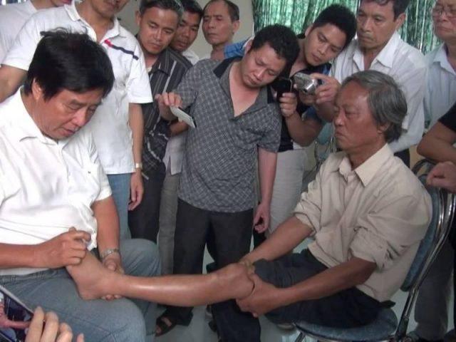 Dư Quang Châu chữa thoát vị đĩa đệm