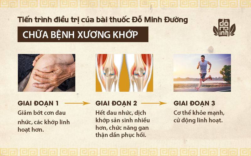 Tiến trình phục hồi bệnh xương khớp sau khi sử dụng bài thuốc Xương khớp Đỗ Minh