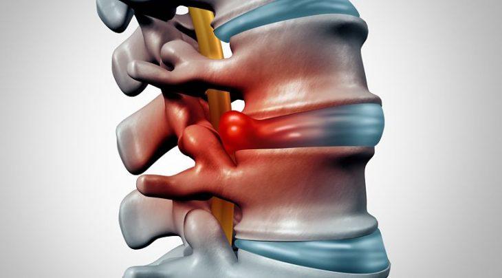 Lệch đĩa đệm là tình trạng xương khớp thường gặp