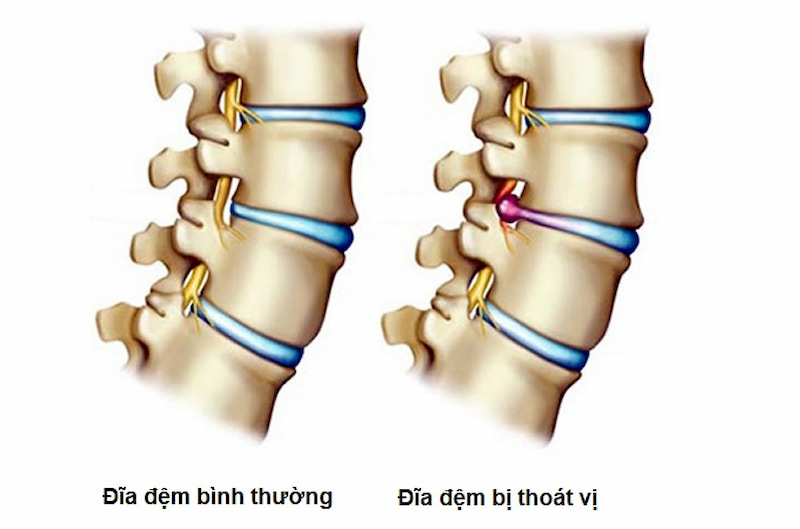Mổ thoát vị đĩa đệm giải quyết những cơn đau do dây thần kinh bị chèn ép