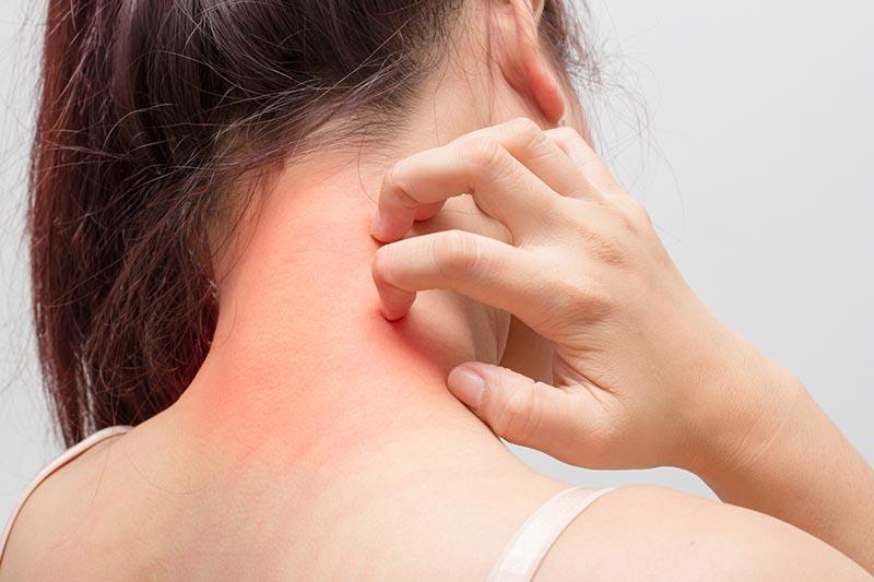 Ngứa da là một triệu chứng gây ra bởi các kích thích thần kinh khiến người bệnh muốn gãi