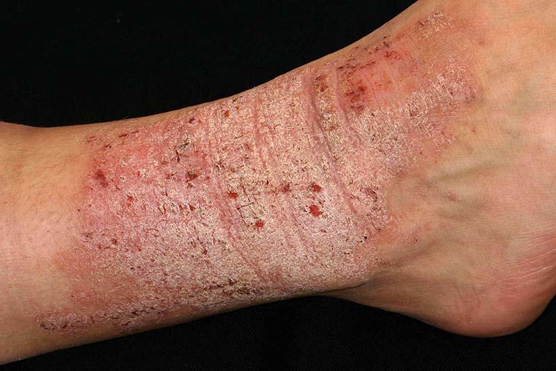 Ngứa da kéo dài và thường xuyên dễ gây ra những triệu chứng của bệnh viêm da thần kinh