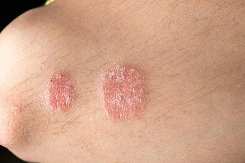 Nấm da dễ gặp ở những người vệ sinh kém hoặc có hệ miễn dịch suy giảm