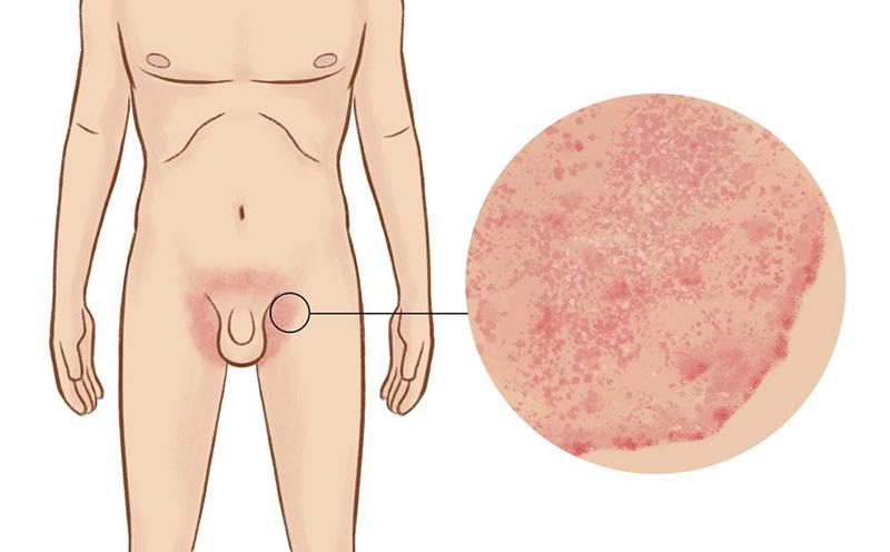 Bệnh nấm háng thường xuất hiện nhiều hơn ở nam giới