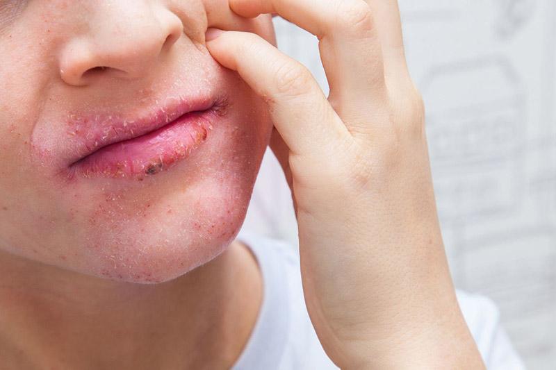 Bệnh chàm môi thường xuất hiện ở những người có cơ địa nhạy cảm