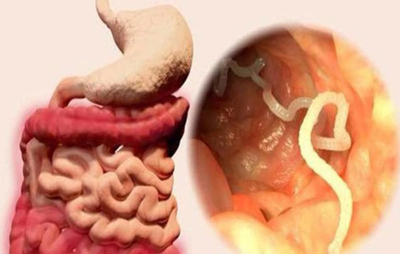 Nhiễm giun sán, ký sinh trùng có thể là nguyên nhân khiến da ngứa và nổi hạt như da gà