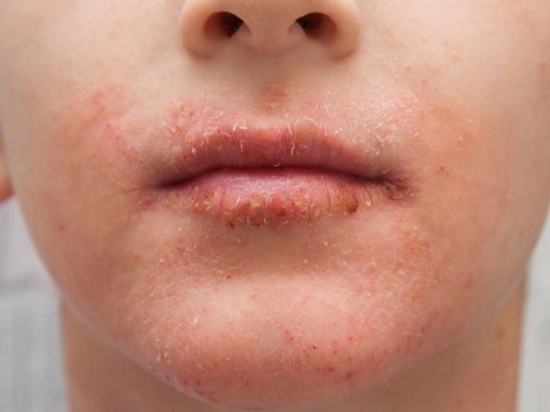 Chàm da thường xuất hiện ở những người có bệnh lý cơ địa, dị ứng