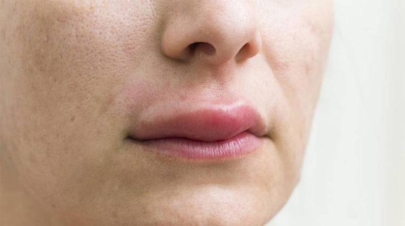 Dị ứng ở da môi và quanh miệng thường gây sưng đỏ, phù nề tại chỗ
