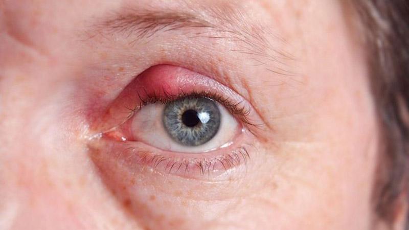 Viêm bờ mi, viêm mí mắt có thể gây ngứa, sưng đỏ, phù nề vùng da quanh mắt